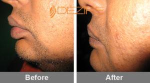 abhishek lip reduction surgery Delhi, Pune, Bangalore
