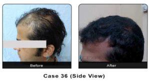hair_transplant36a