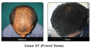 hair_transplant37a
