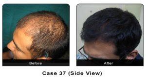 hair_transplant37b