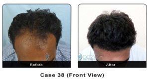 hair_transplant38a