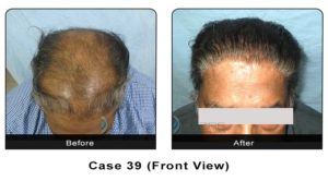 hair_transplant39a