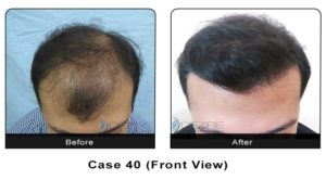 hair_transplant40a