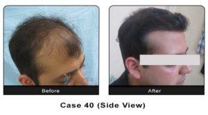 hair_transplant40b