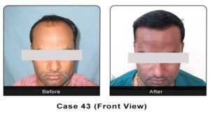 hair_transplant43a
