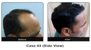 hair_transplant43b