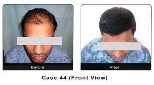 hair_transplant44a