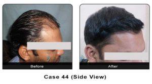 hair_transplant44b