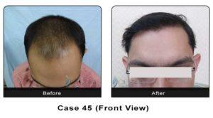 hair_transplant45a