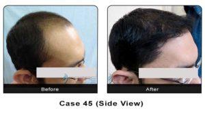 hair_transplant45b