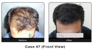 hair_transplant47a