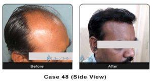 hair_transplant48b