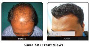 hair_transplant49a