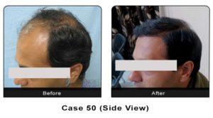 hair_transplant50b