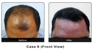 hairtransplant001