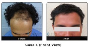 hairtransplant002