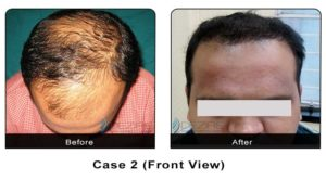 hairtransplant004