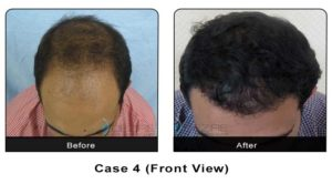 hairtransplant006