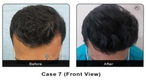 hairtransplant007