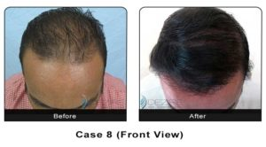 hairtransplant008a