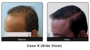 hairtransplant008b