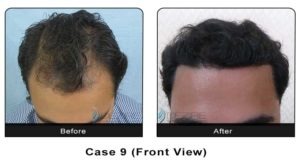 hairtransplant009a