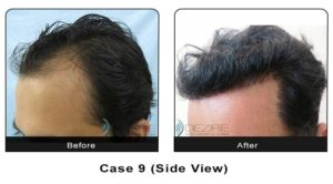 hairtransplant009b