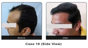 hairtransplant010b