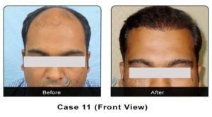 hairtransplant011a