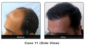 hairtransplant011b