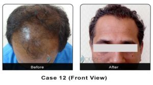 hairtransplant012a