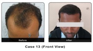 hairtransplant013a