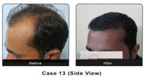 hairtransplant013b