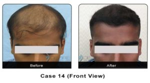 hairtransplant014a
