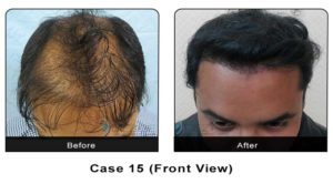hairtransplant015a