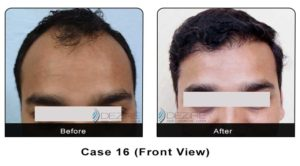 hairtransplant016a