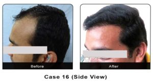 hairtransplant016b