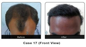 hairtransplant017a