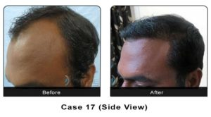 hairtransplant017b