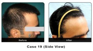 hairtransplant019a