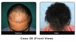 hairtransplant020