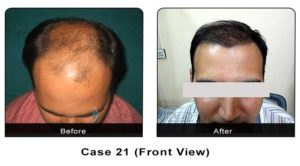 hairtransplant021