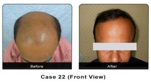 hairtransplant022
