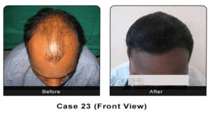hairtransplant023