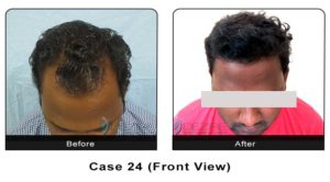 hairtransplant024