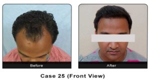 hairtransplant025b