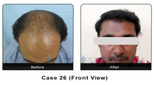 hairtransplant026b
