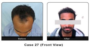 hairtransplant027a