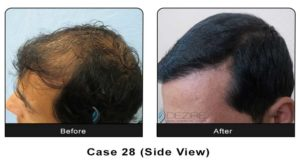 hairtransplant028