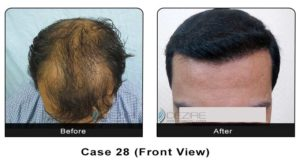 hairtransplant028a